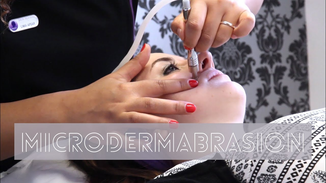 what is microdermabrasion treatments reviews